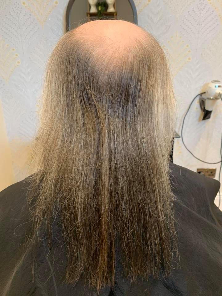 Tracey Grimes Hair Scalp Clinic